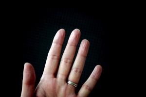 dedos choritos